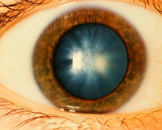 causes-cataracts